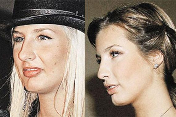 Кэти Топурия до и после пластики носа