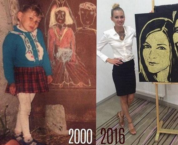 Елена Хромина до и после пластики