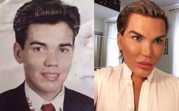 Родриго Алвес до и после пластики фото