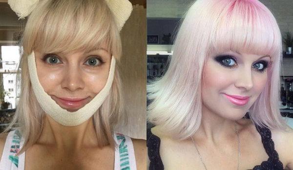 Натали до и после пластики фото