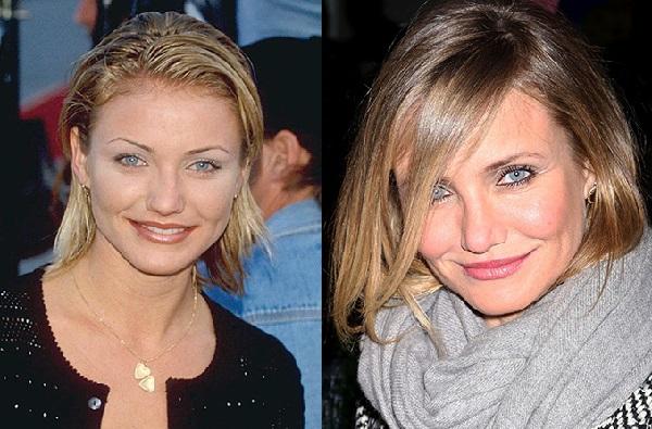 Кэмерон Диаз до и после пластики фото