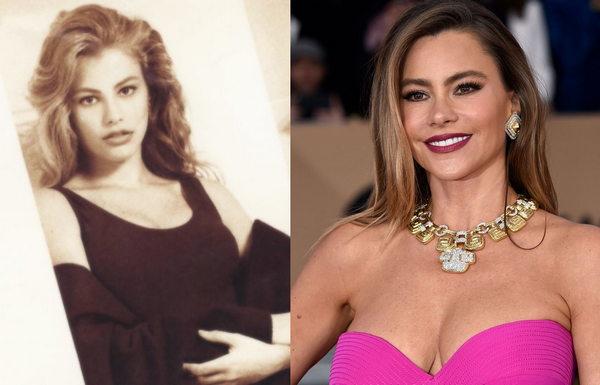 София Вергара до и после