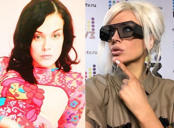 Таня Терешина до и после пластики
