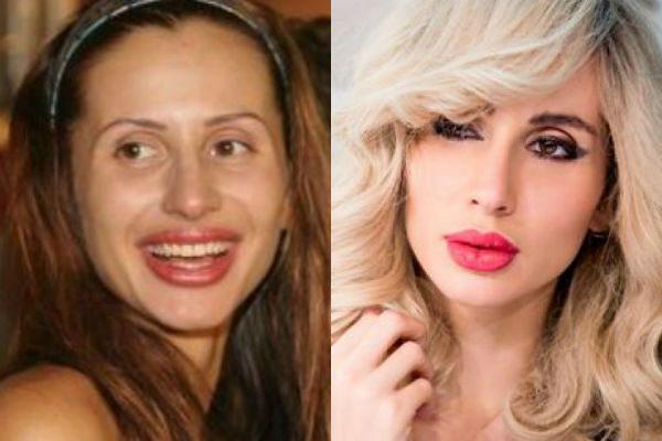 Фото Светланы Лободы до и после пластики