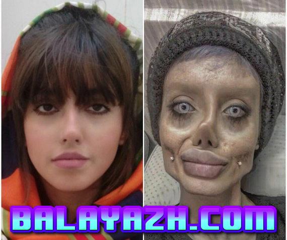 Фото Сахар Табар до и после пластики