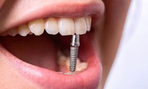 Implantatsiya zubov