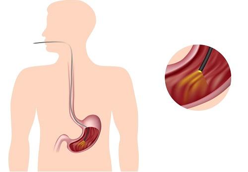 endoskopija pri gemorragicheskom gastrite