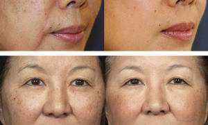 lazernoe udalenie pigmentacii